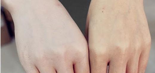 تنعيم الجلد