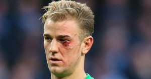 اصابة جو هارت 300x157 بالصور اصابة جو هارت في العين في مباراة مانشستر سيتي وكريستال بالاس