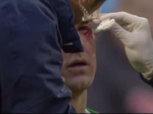 الحارس جو هارت 300x224 بالصور اصابة جو هارت في العين في مباراة مانشستر سيتي وكريستال بالاس