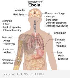 فيروس ايبولا 267x300 ما هو فيروس ايبولا و اعراضه و طرق العلاج منه