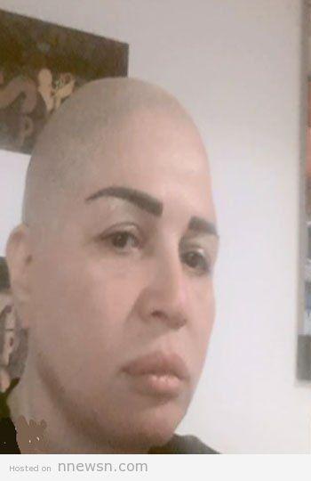 elham shahin bald no hair photo 2015
